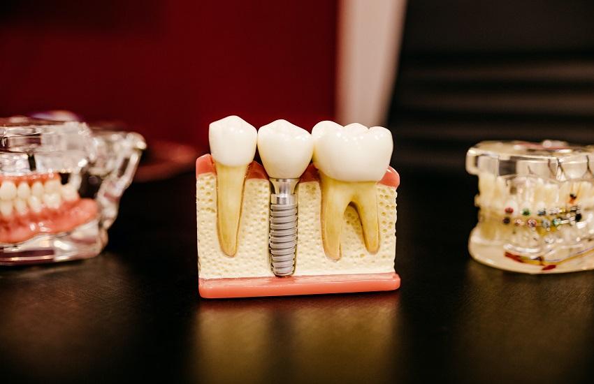 teeth cavities in kids